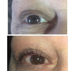 Before and After Lash Lift - Aura Face and Body